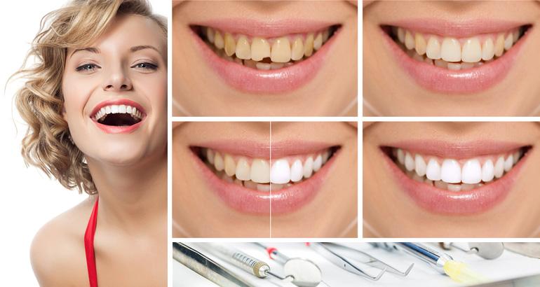 Аспекты выбора цвета для коронок передних зубов. Советы стоматологу.