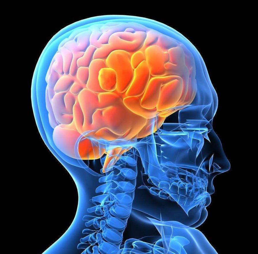 Болезнь Альцгеймера и инсульт: что общего