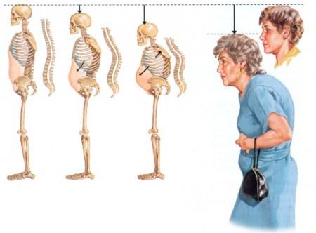 Остеопороз – симптомы, лечение