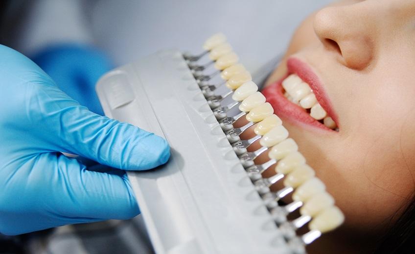 Особенности цветовой коррекции при изготовлении зубных коронок