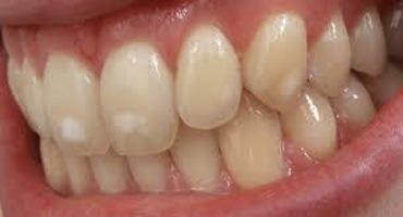 Аномалии развития зубов - гипоплазия эмали