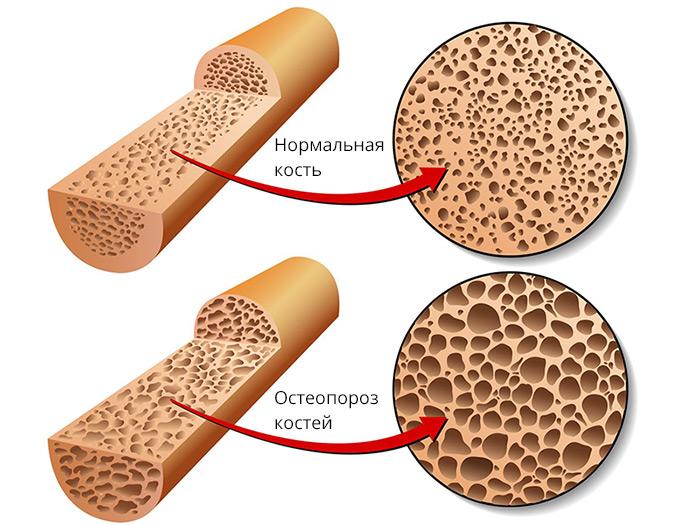 Остеопороз костей — как лечить и определить симптомы