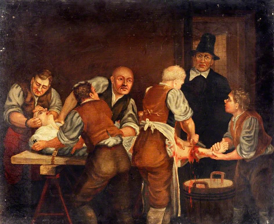 7 невероятно странных медицинских процедур античности