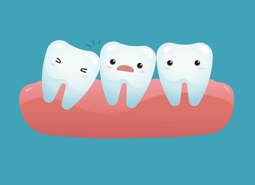 Дистопия зубов — диагностика и лечение