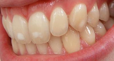 Свойства дентина и зубной эмали в контексте стоматологического лечения