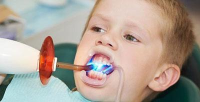 Герметики фиссур и ямок в стоматологии