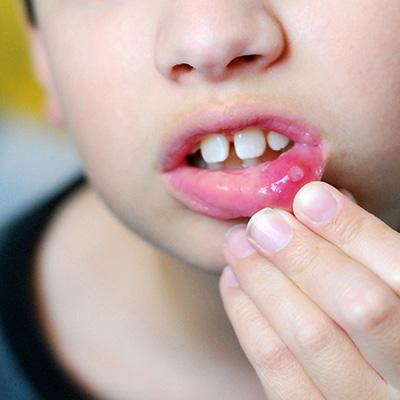 Стоматит у детей способы лечения
