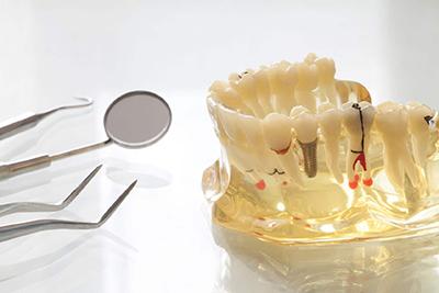 Варианты протезирования в имплантационной стоматологии