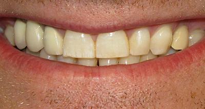 Естественное старение зубов и истончение эмали.