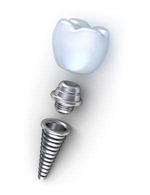 Строение дентального имплантата