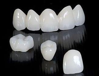 Создание прообраза и пробные стоматологические реставрации