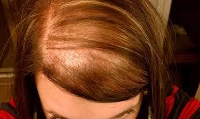 Диффузное выпадение волос у женщин. Причины и методы устранения болезни