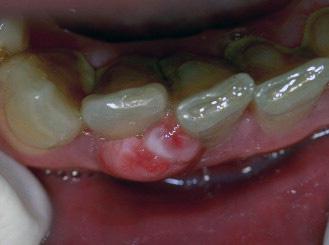Эпулис – характеристика заболевания и методы его лечения