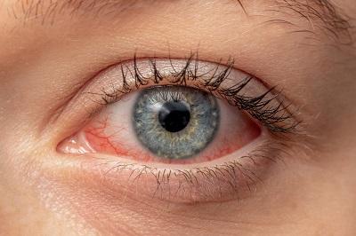 Шесть факторов, негативно влияющих на состояние глаз