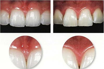 Укладка мягких тканей верхней челюсти в дентальной имплантологии