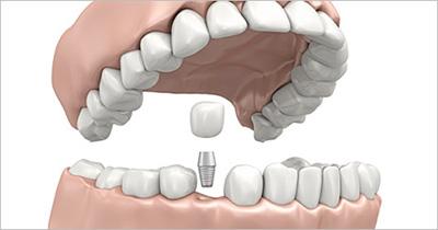 Естественные зубы, протезы или имплантанты — план лечения и прогноз