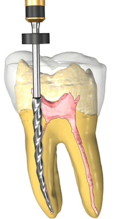 Пломбирование и лечение каналов зуба — ошибки, методы