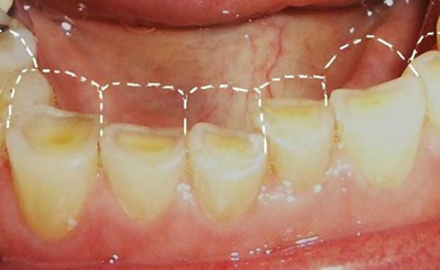 Физиология формы зубов