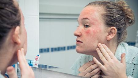 Сыпь на лице - причины и способы лечения